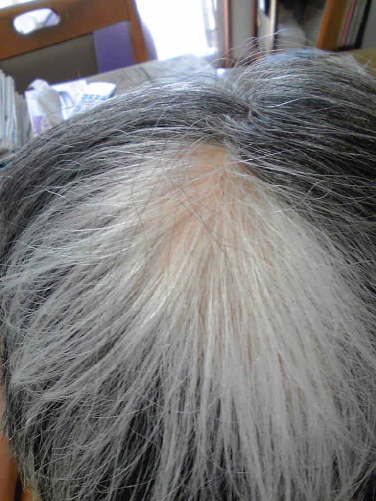 円形脱毛症ー3